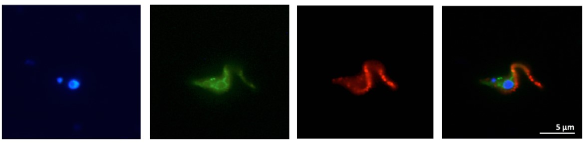 Immunofluorescence showing images of a transgenic Trypanosoma brucei procyclic cell expressing a GFP (green-) and HA epitope (red-) tagged trypanosome surface glycoprotein. The kinetoplast and the nucleus are stained with DAPI (blue).
