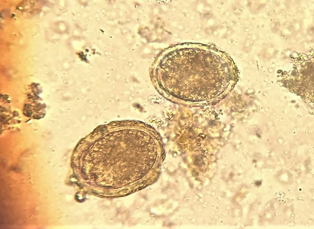 Creepy tropical eggs (under x400 magnification).