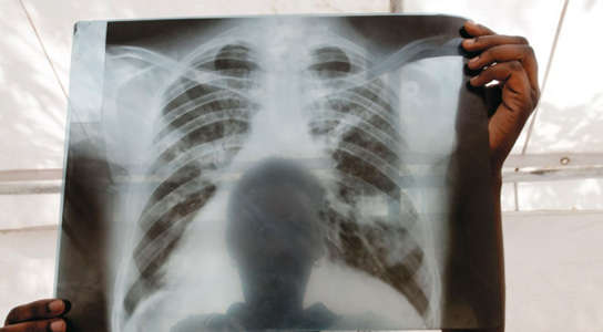 A chest X-ray from a patient with tuberculosis (TB) in Lira, Uganda. Credit: J. Matthews/Panos