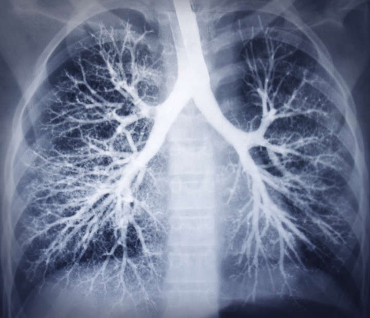 tuberculosis disease essay Tuberculosis essays examine the deadly disease that is spread through the air and infects the lungs.
