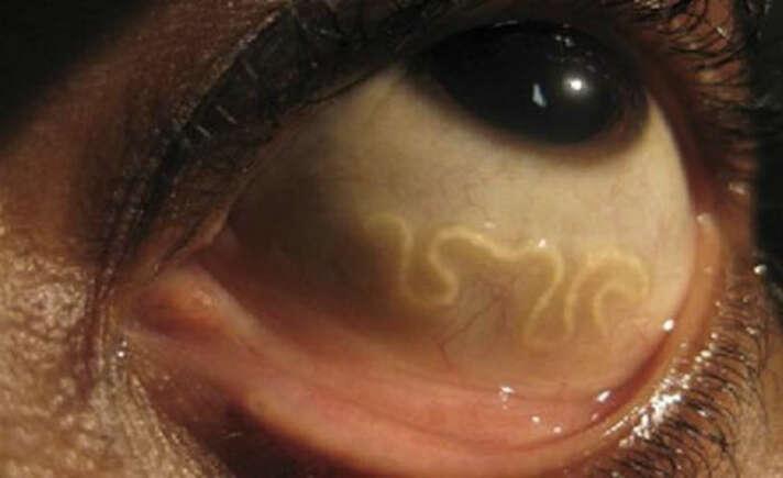 African Eye Worm