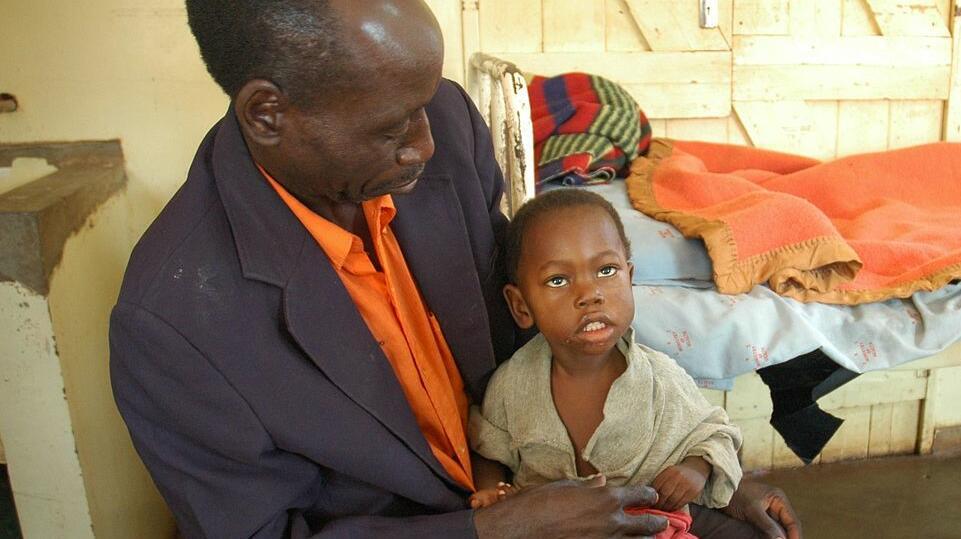 Credit: Jmesser5 via Wikimedia Commons. Child recovering from cerebral malaria