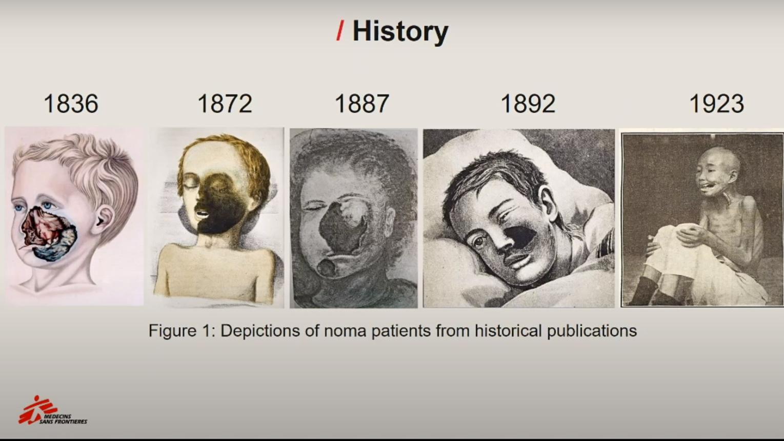 Historical illustrations of Noma