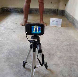 Camera set up for taking images of participants lower legs