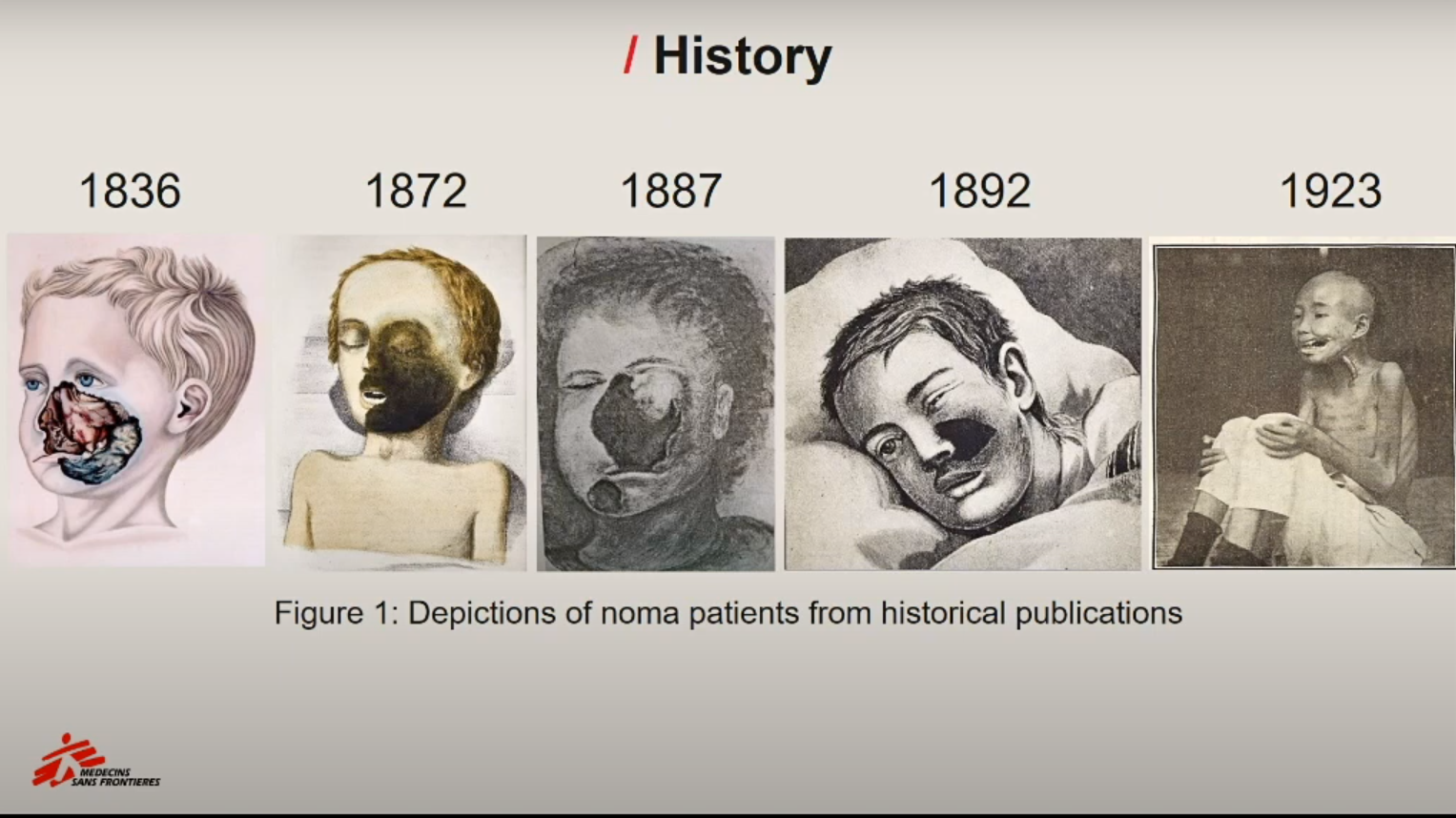 Historical illustrations of Noma