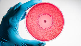 microbiological culture being examined